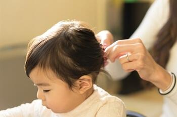 子供の脱毛症の原因とは